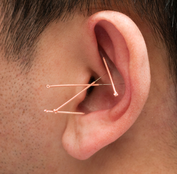 Acupuncture for stop smoking
